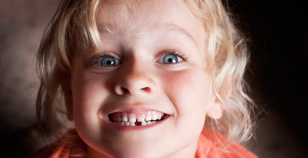 Saving Space for Permanent Teeth with a Space Maintainer