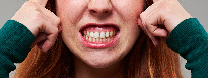 The Lowdown on Bruxism